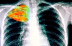 ΝΕΑ ΕΙΔΗΣΕΙΣ (Θετικοί σε φυματίωση 15 εργαζόμενοι σε νοσοκομείο της Θεσσαλονίκης)