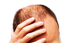 ΝΕΑ ΕΙΔΗΣΕΙΣ (Δείτε ποιο σοβαρό πρόβλημα υγείας υποδεικνύει η απώλεια μαλλιών)