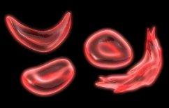 ΝΕΑ ΕΙΔΗΣΕΙΣ (Ένα βήμα από την πρώτη γονιδιακή θεραπεία της δρεπανοκυτταρικής αναιμίας)