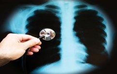 ΝΕΑ ΕΙΔΗΣΕΙΣ (ΕΡΕΥΝΑ: Εννιά στους δέκα ενηλίκους Έλληνες δεν ξέρουν τι είναι η πνευμονία)