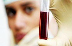 ΝΕΑ ΕΙΔΗΣΕΙΣ (Τεστ αίματος ανιχνεύει την οστεοαρθρίτιδα χρόνια πριν τα πρώτα συμπτώματα)