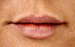 ΝΕΑ ΕΙΔΗΣΕΙΣ (Ο «ύπουλος» καρκίνος του στόματος)