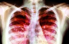 ΝΕΑ ΕΙΔΗΣΕΙΣ (Σιωπηλή επιδημία: Λοίμωξη εξαπλώνεται σε ασθενείς με κυστική ίνωση)