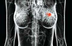 ΝΕΑ ΕΙΔΗΣΕΙΣ (Καρκίνος μαστού: 4 ανησυχητικά σημάδια εκτός από τους ψηλαφητούς όγκους)