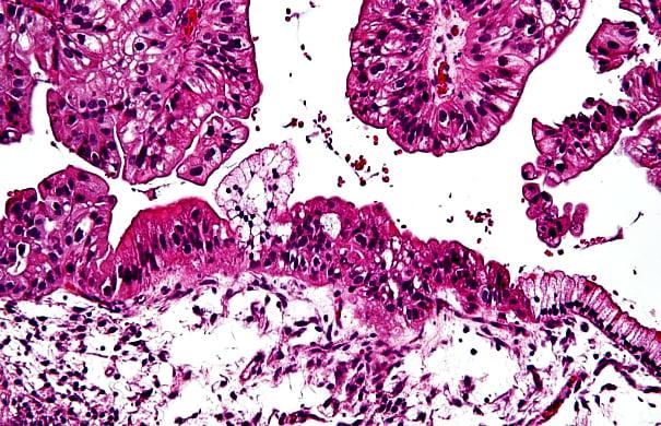 ovarian-cancer-1021x580