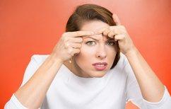 ΝΕΑ ΕΙΔΗΣΕΙΣ (Έρευνα: Αυξάνεται ο κίνδυνος για σοβαρή κατάθλιψη μετά την εμφάνιση ακμής)